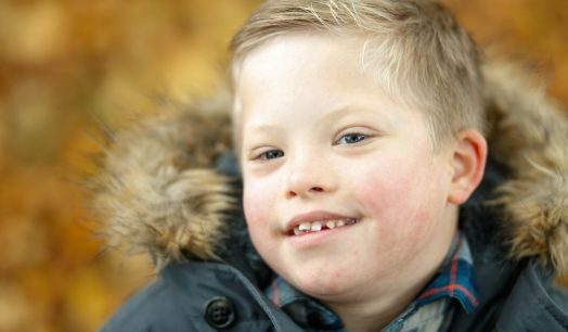 What is Down's Syndrome?